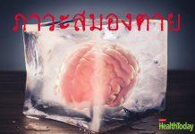 ภาวะสมองตาย